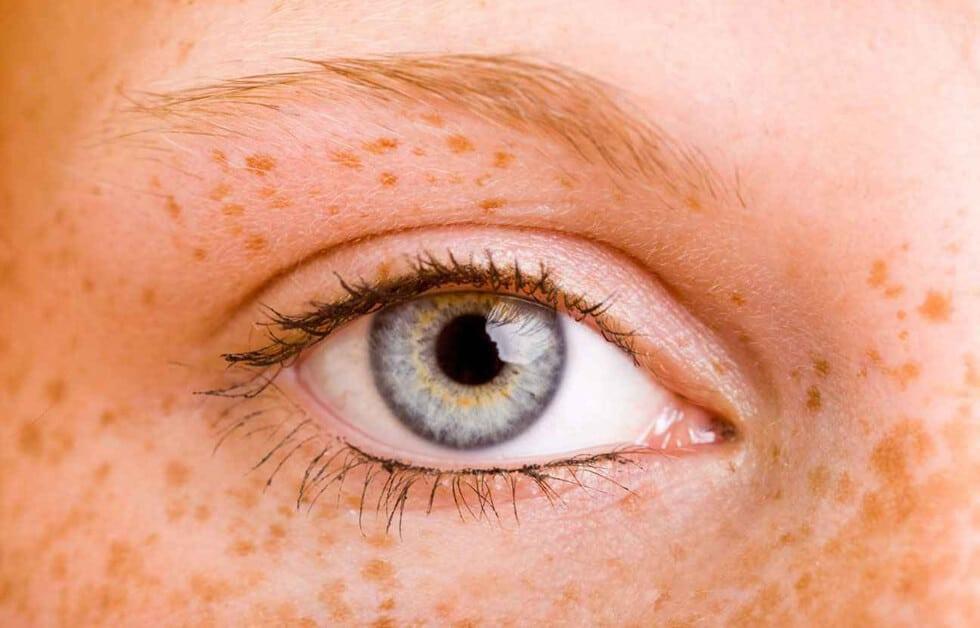 Lunettes absentes, mais photo de l'oeil d'une jeune femme avec taches de rousseur